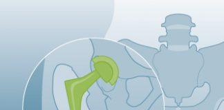attendorner geschichten - arthrosehüfte helios