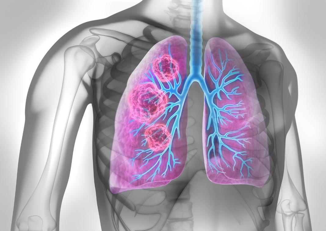 attendorner geschichten - thorax